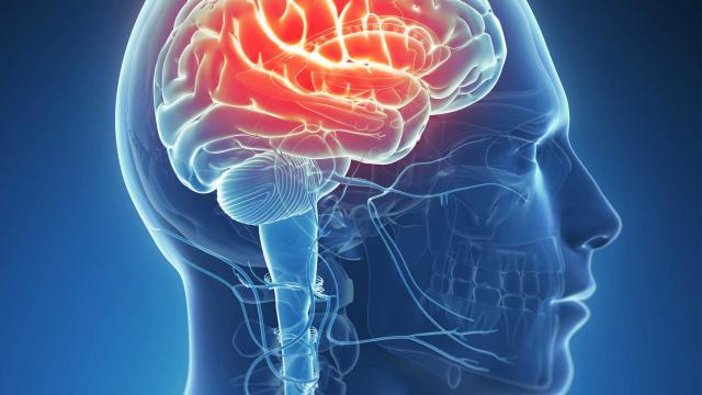 HG170_brain-epilepsy_FS